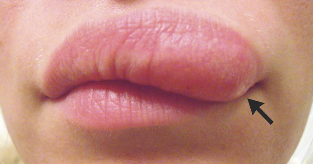 The Best Home Remedies For A Swollen Lip From A Bug Bite